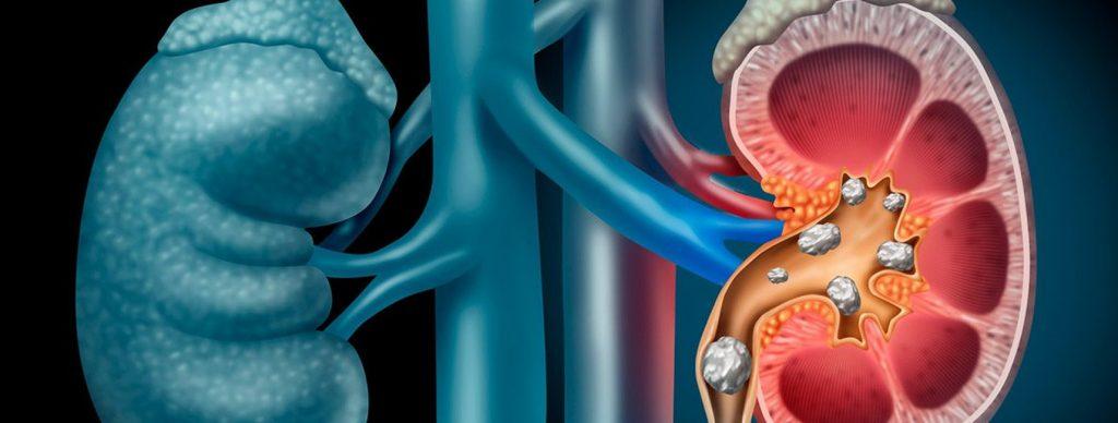 cálculos en en riñón
